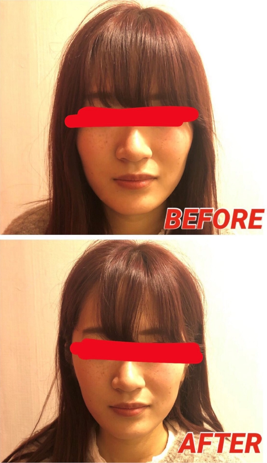 BeforeAfter-face