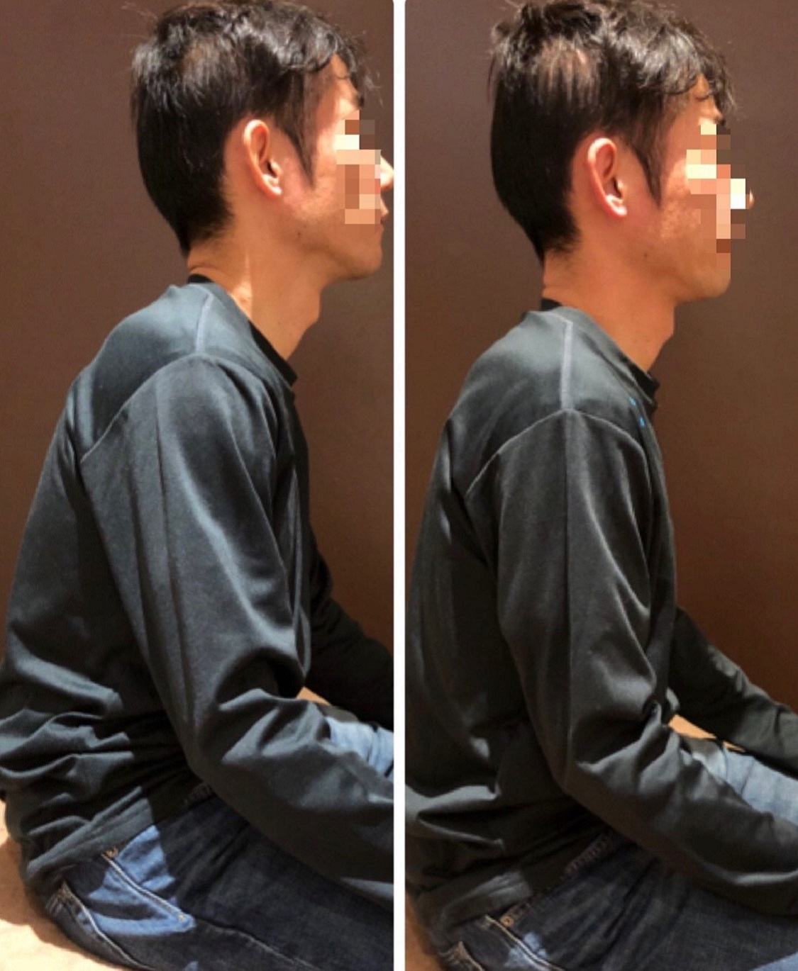 beforeAfter猫背矯正5