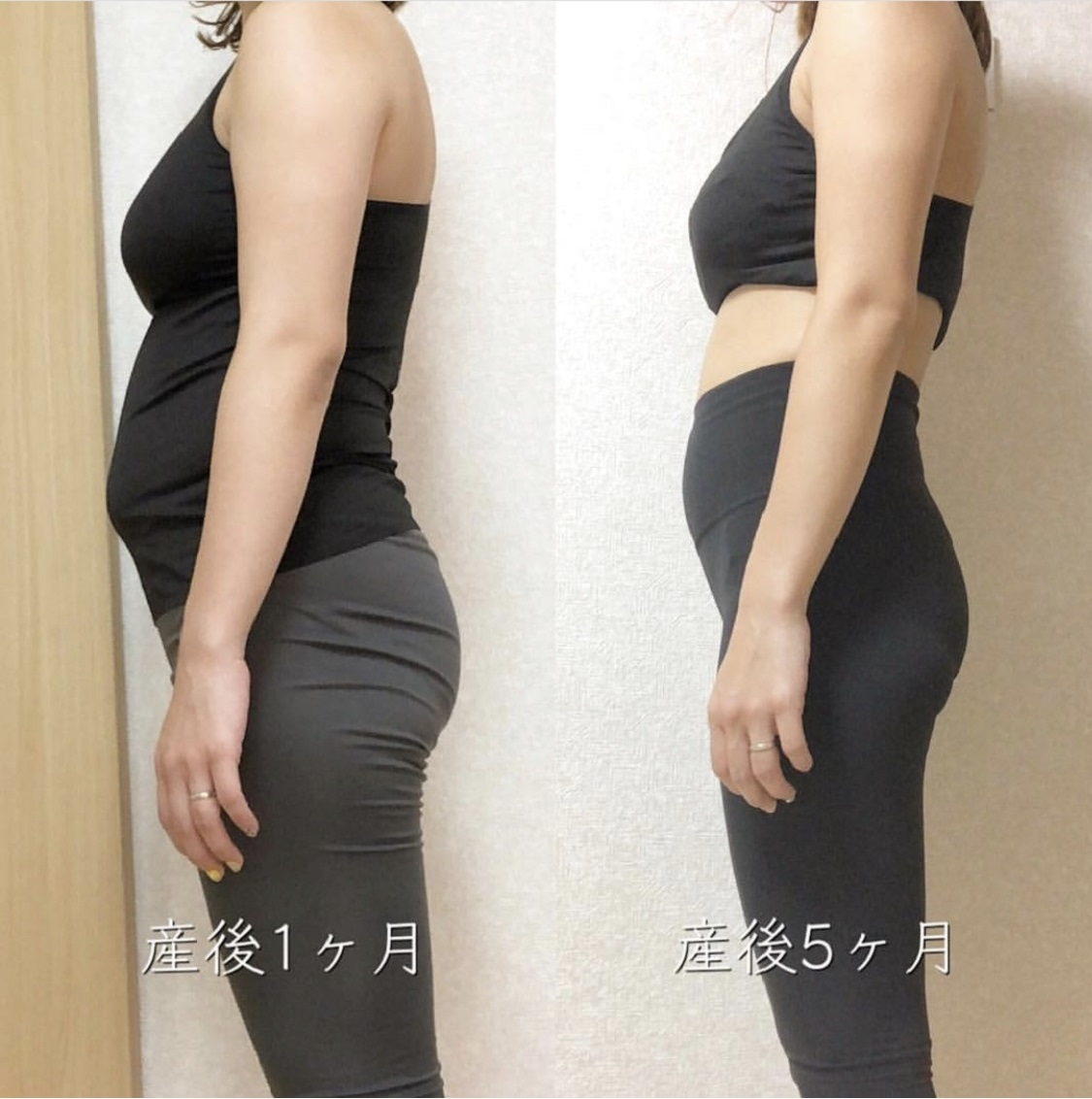 beforeAfter産後矯正