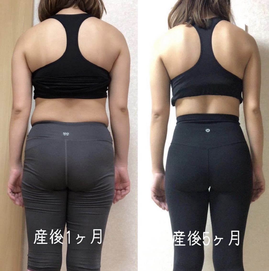 beforeAfter産後矯正2